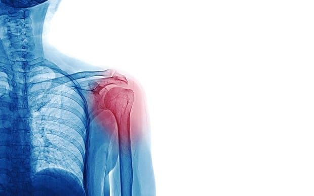 травма плеча при шрагах