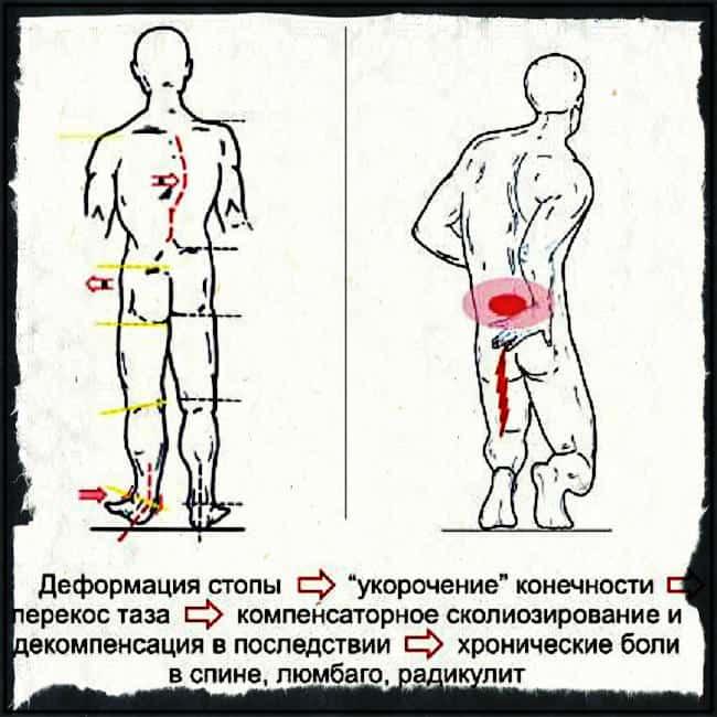 Физиологические причтины болей в спине