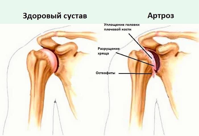 Жжение плечевого сустава диабет боли в суставах