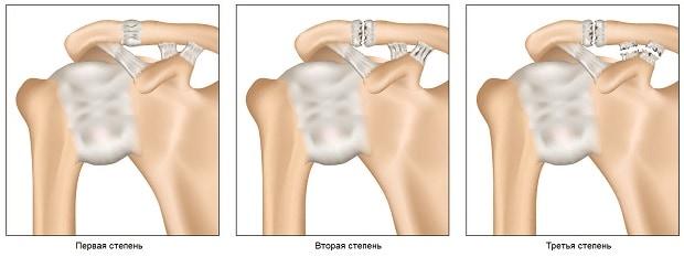 Травмирование сухожилий плечевого сустава