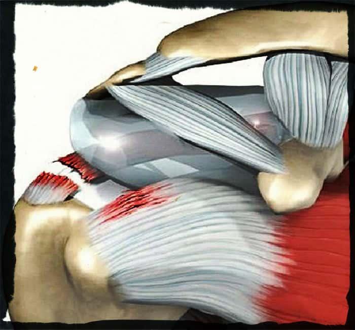 травма роторной манжетки