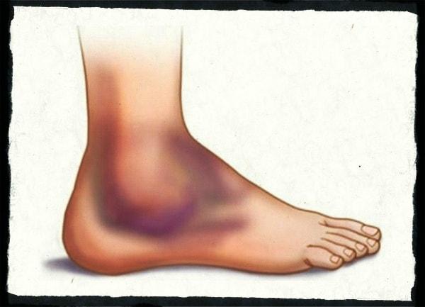 растяжение ноги фото