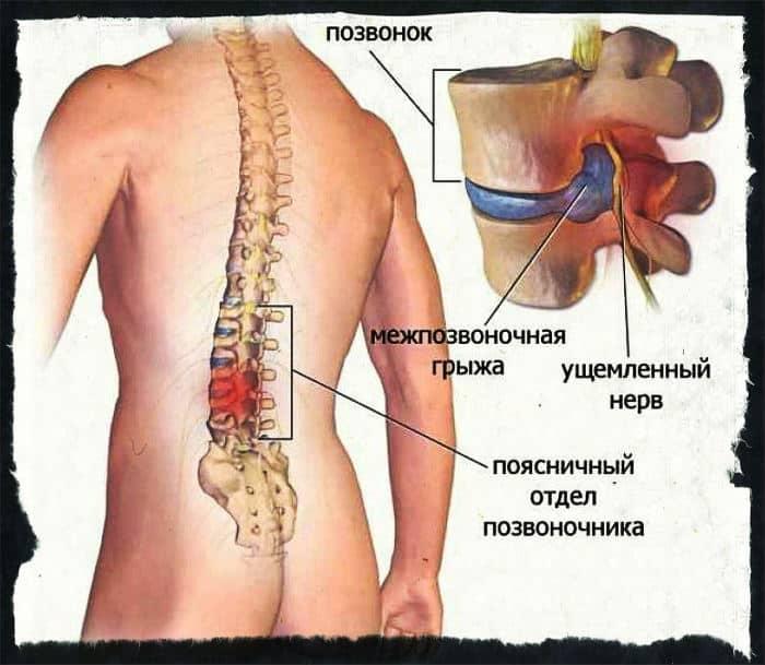 Упражнения для грыж шейного и грудного отделов позвоночника