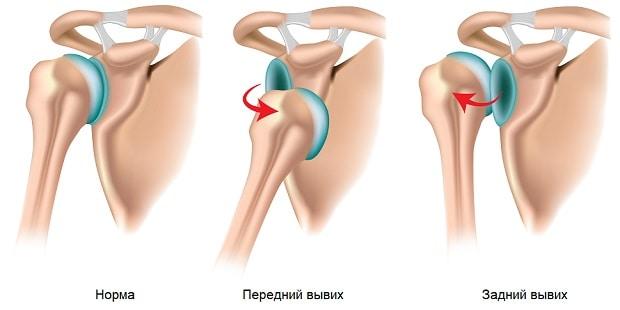 Передний и задний вывихи плеча