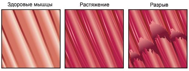 Растяжение и разрыв мышц