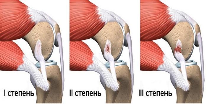 Разрыв связки колена
