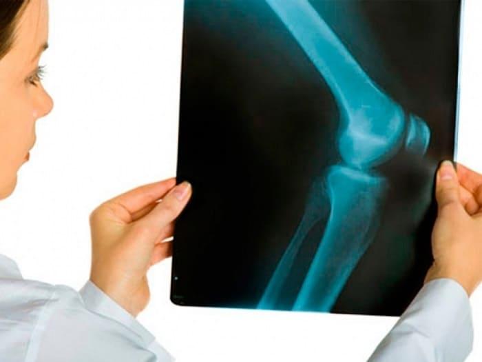 Травма колена на рентгеновском снимке