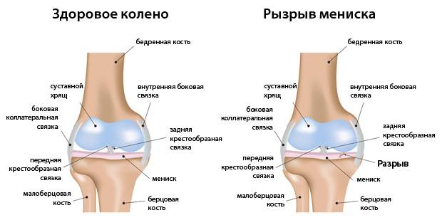 Разрыв мениска и здоровое колено