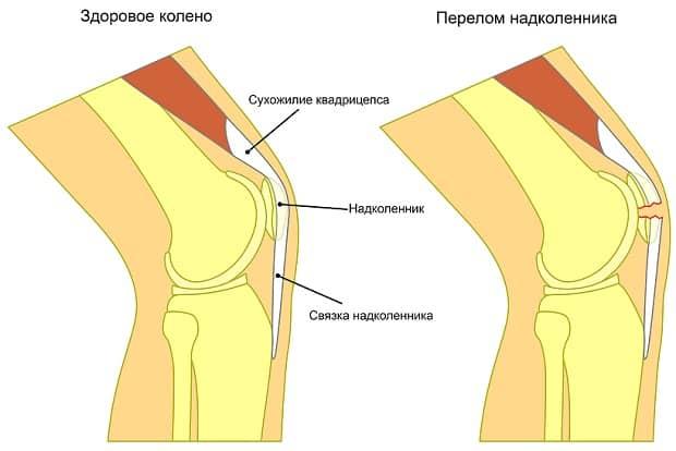 Ушиб мыщелка коленный сустав thumbnail