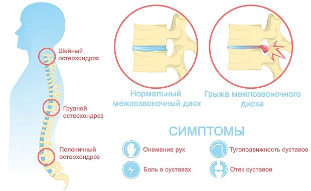 остеохондроз инфографика