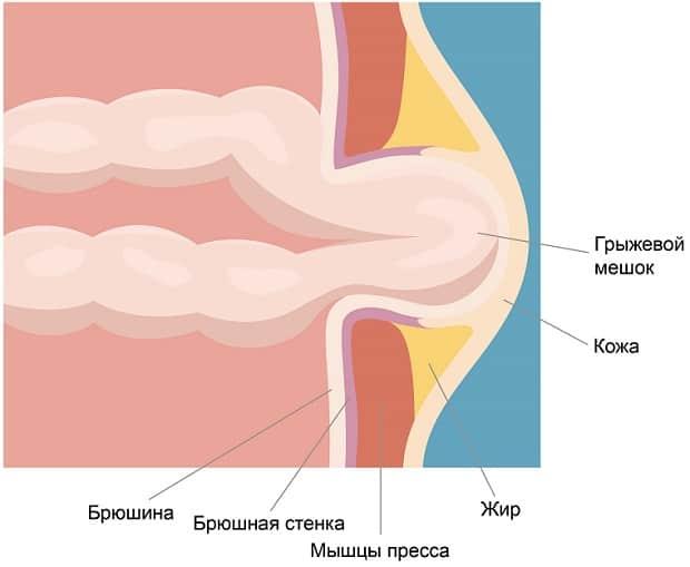 Строение брюшной области при грыже