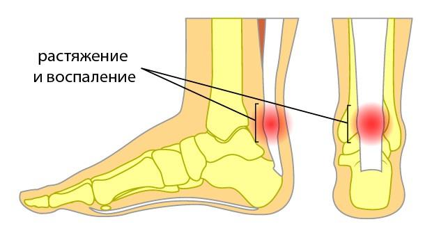 Растяжение сухожилия