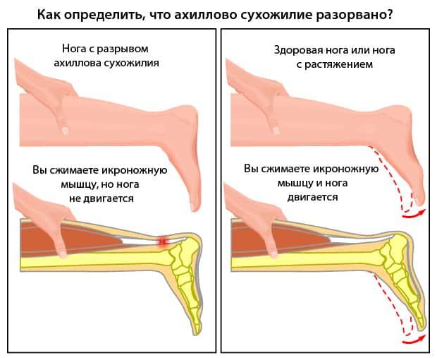 Как понять, что сухожилие разорвано