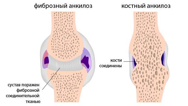 Два вида анкилоза