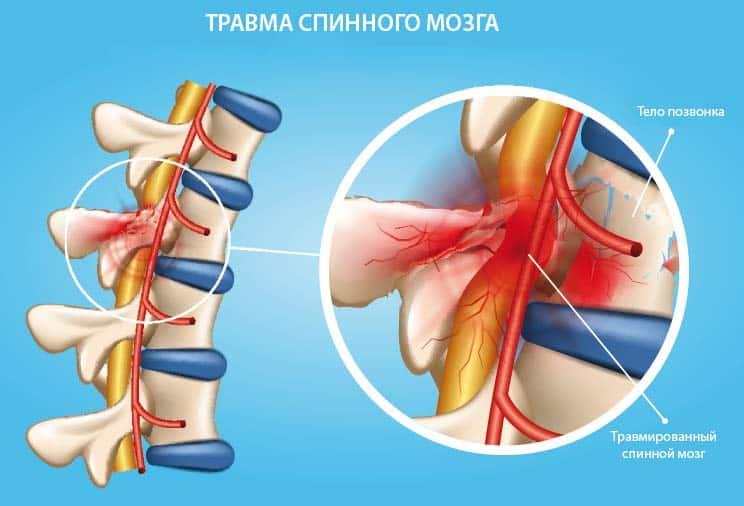 Травмированный спинной мозг