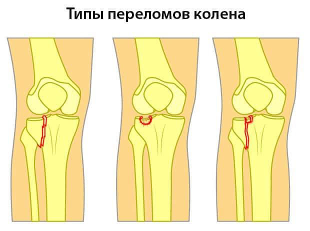 Разные переломы колена