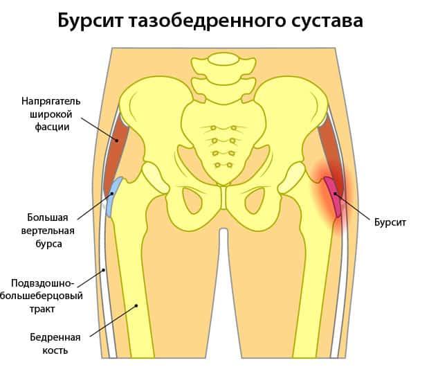 Что такое Бурсит тазобедренного сустава