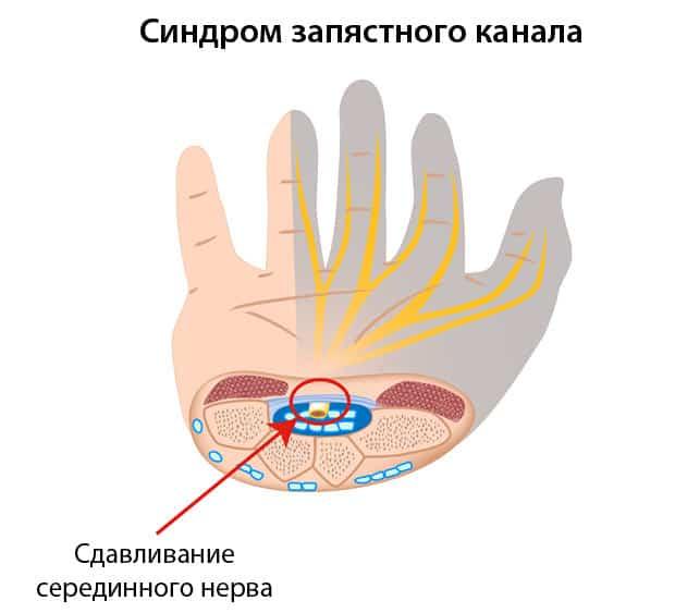 Изображение синдром запястного канала