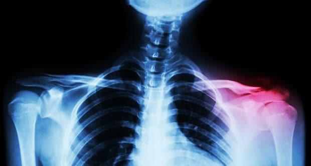Рентген ключицы