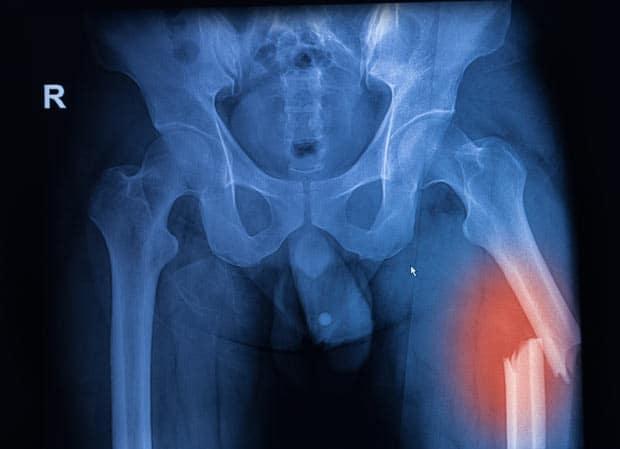 Рентген перелом бедренной кости