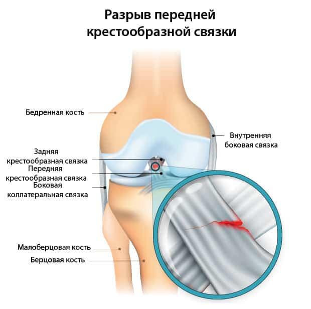Схема разрыва передней крестообразной связки