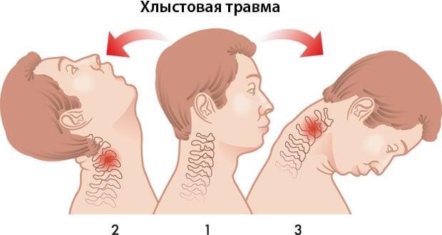 Проявление хлыстовой травмы