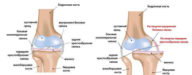 Вывих колена