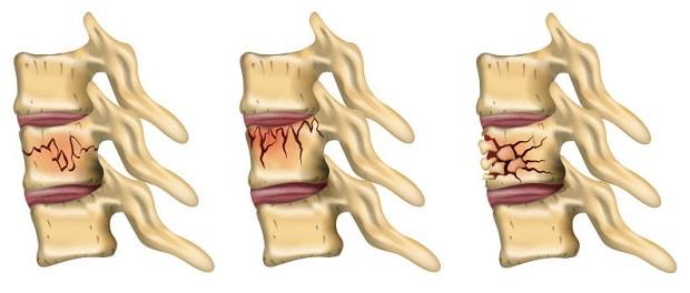 Типы компрессионного перелома позвоночника