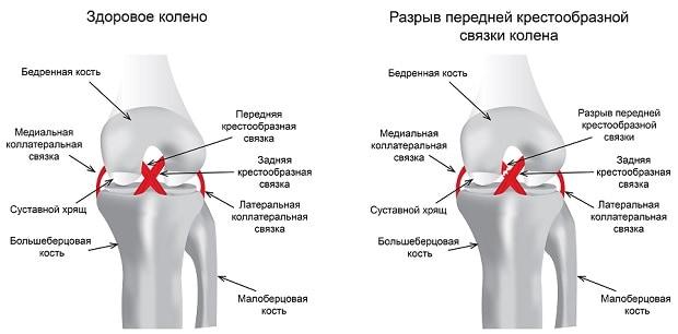 Разрыв передней крестообразной связки